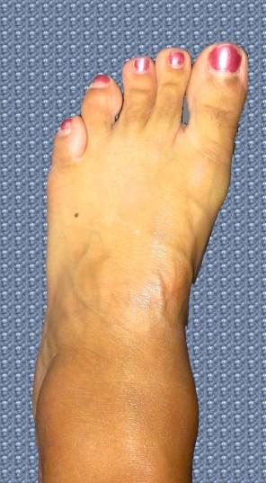 foot image